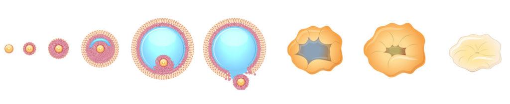 Aνωοθυλακιορρηξία: όταν το ωάριο παίρνει απουσία.
